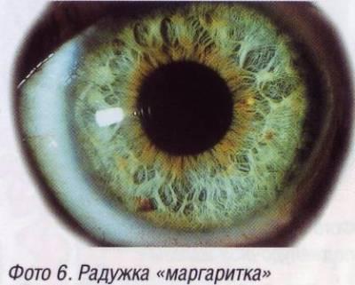 Оно представляет собой замкнутое кольцо толщиной около 0,5 мм и шириной почти 6мм, расположенное под склерой и отделенное от нее супрацилиарным пространством